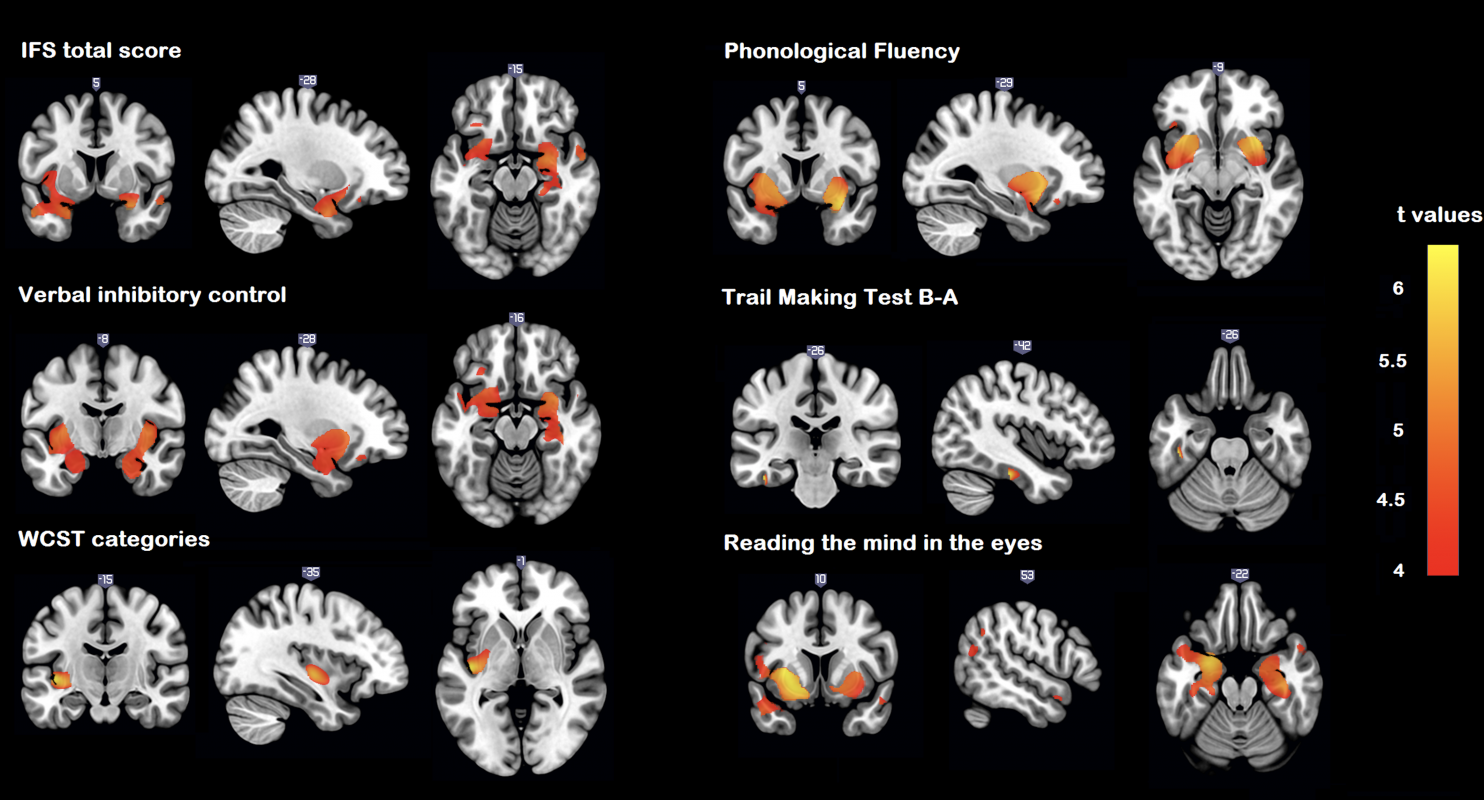 Brain structural correlates of executive and social cognition profiles in behavioral variant frontotemporal dementia and elderly bipolar disorder