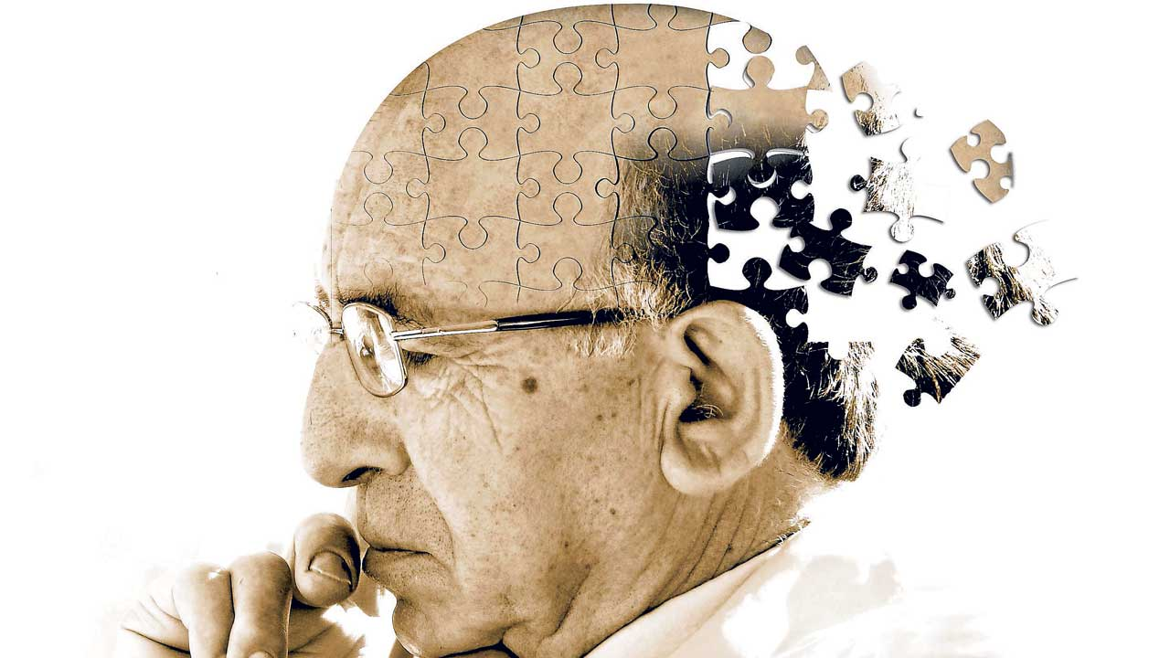 Brain transcriptome sequencing of a natural model of Alzheimer's disease