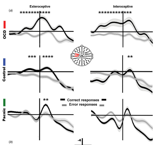 The inner world of overactive monitoring neural markers of interoception in obsessive compulsive disorder