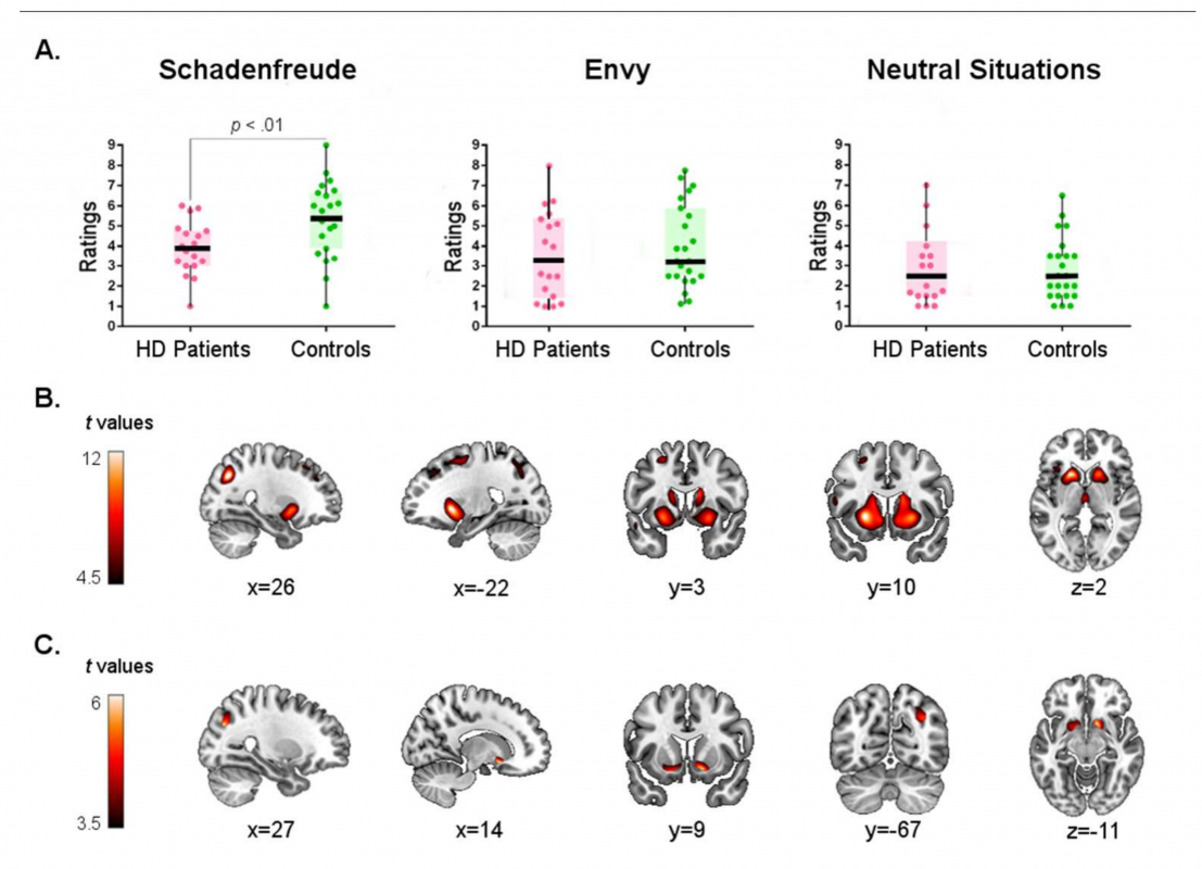 Corticostriatal signatures of schadenfreude evidence from Huntingtons disease