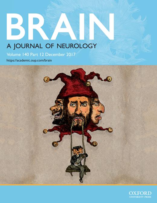 Brain_Cover Dec (1)