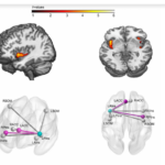 Multilevel convergence of interoceptive impairments in hypertension New evidence of disrupted bodybrain interactions