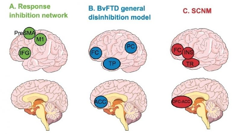 Brain oscillations, inhibition and social inappropriateness in frontotemporal degeneration